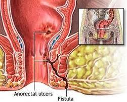causes-of-anal-fistulas-cream-free-interracial-pie
